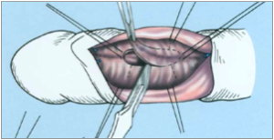 a pénisz kiegyenesítése műtéttel)