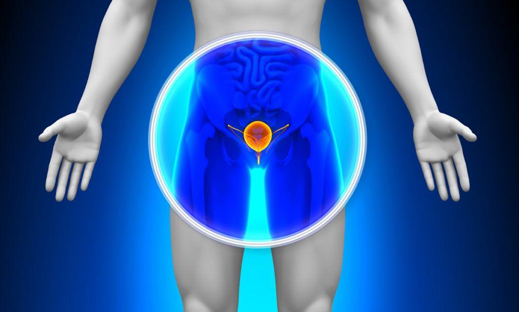 hogyan befolyásolja a krónikus prosztatagyulladás az erekciót)