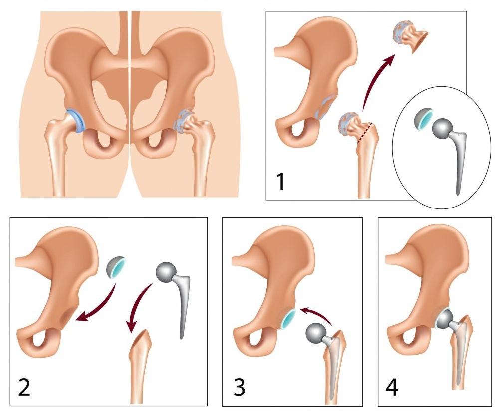 pénisznagyobbító műtét típusok)