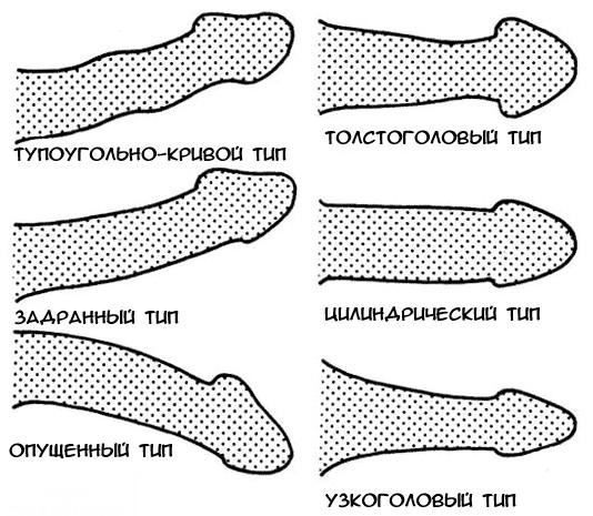 pénisz felálló görbe a férfiak hímvesszőinek alakja és típusai