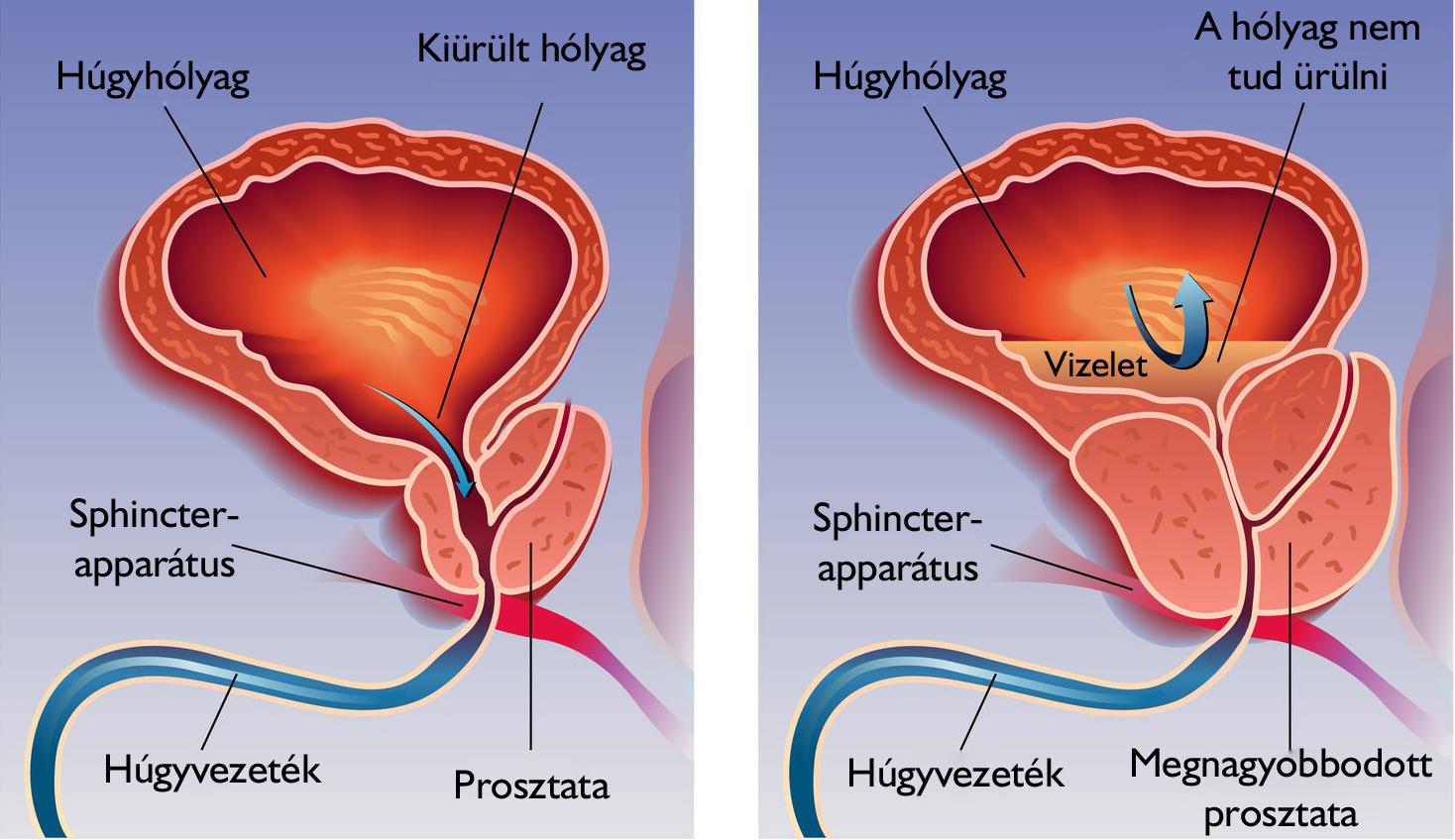 az erekció romlása a prosztatagyulladás kezelése során