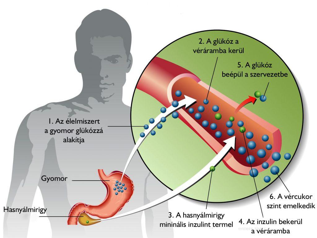 merevedés és 2-es típusú cukorbetegség)
