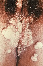 11 tipp a péniszpumpa helyes használatához - pestihirdeto.hu
