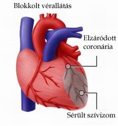 szívroham utáni merevedés