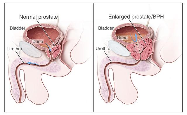 prosztata adenoma erekció)