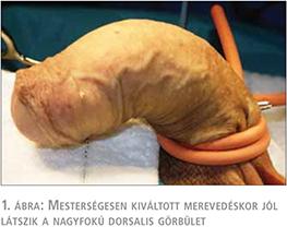 mesterséges pénisz műtét