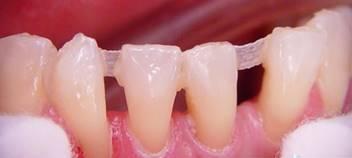 fogak és merevedés