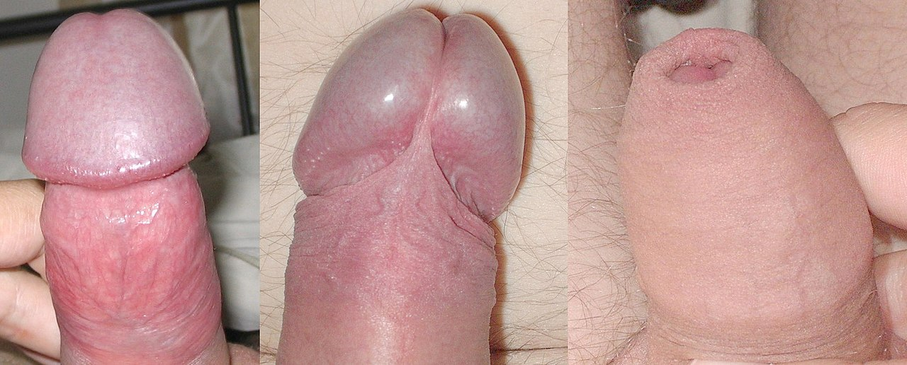 a pénisz megnagyobbodása az erekció során)