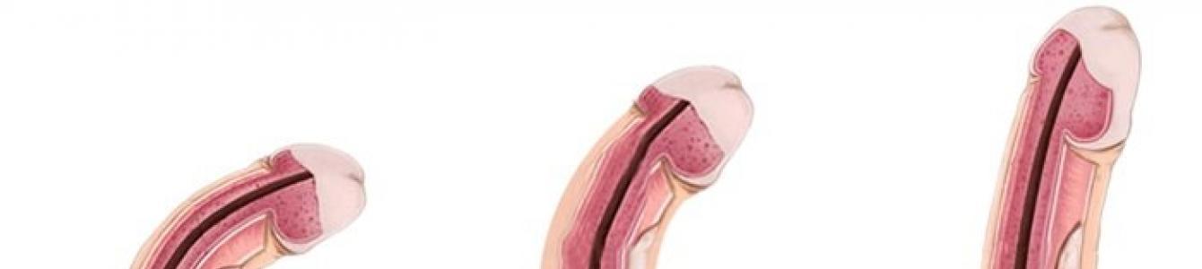 ha a pénisz hajlik az erekció során