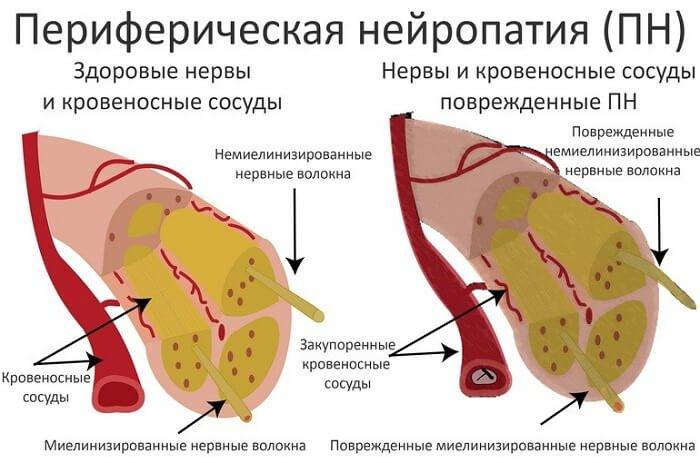 a pénisz megcsípése káros)
