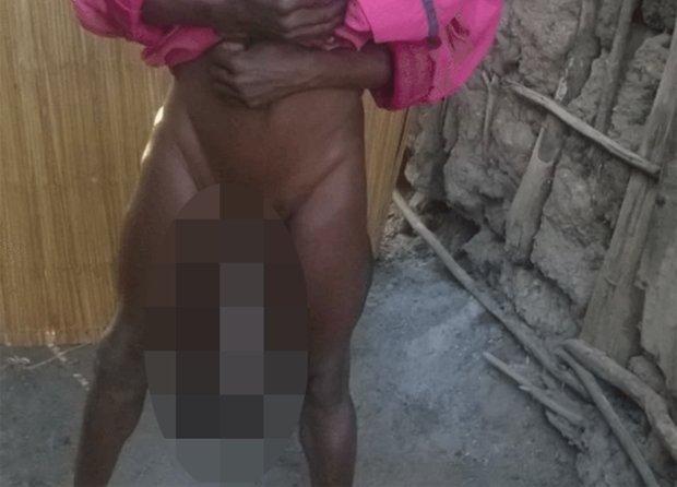 Férfi nemi szervek - Médiatár