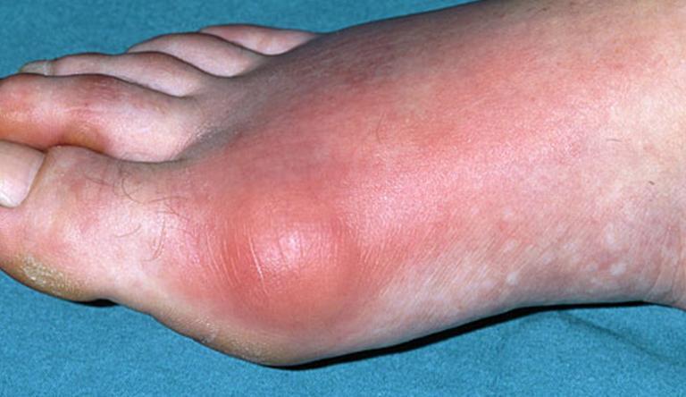 Koro (betegség) – Wikipédia