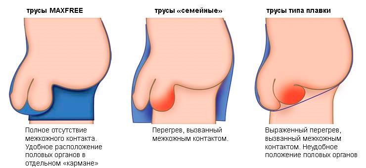 pénisz mekkora legyen az átmérője sikertelen pénisznagyobbítás