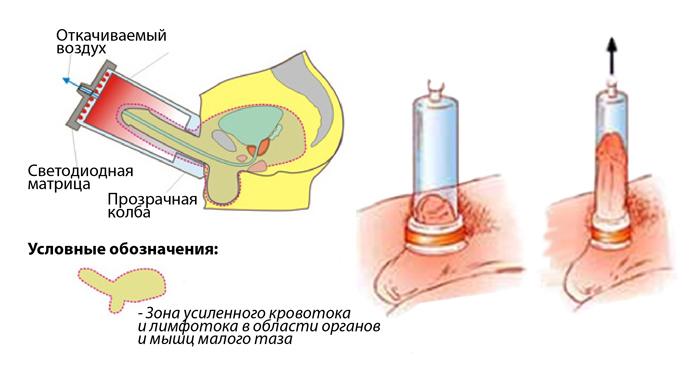 reflex és pszichogén erekció)