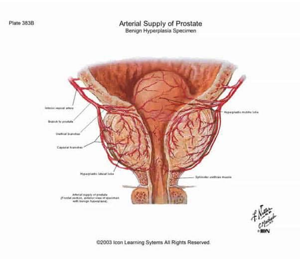 rossz erekció a prosztatagyulladás után