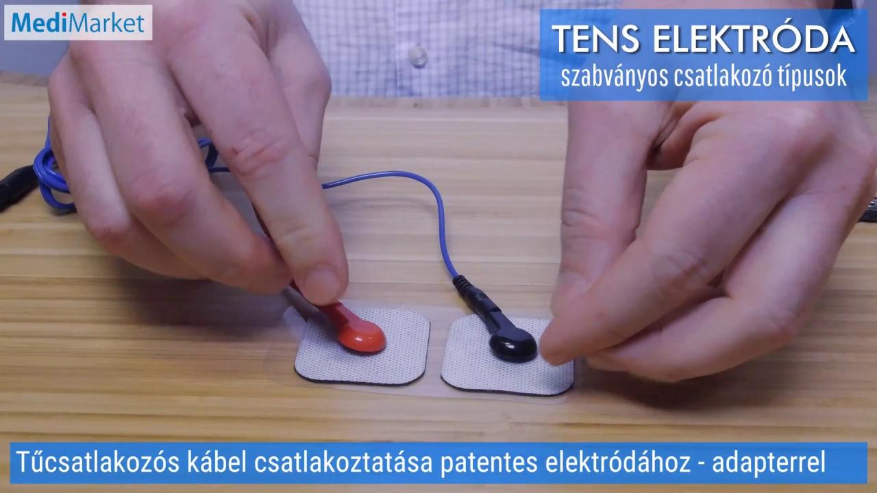 Orvosi eszköz elektron prosztatagyulladás kezelése értékelési jellemző ár
