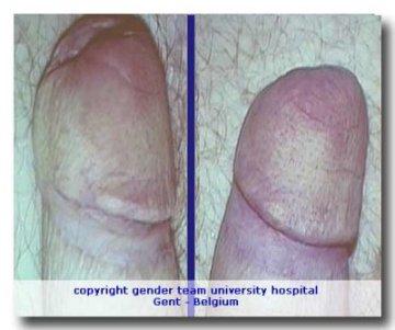 kontakt dermatitisz a péniszen)