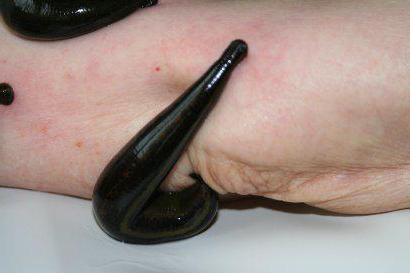 Milyen előnyei vannak az orvosi piócáknak a testnek? - Vasculitis September
