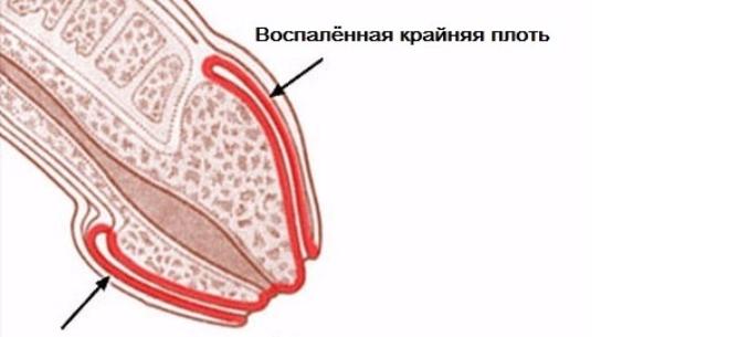 vákuum a péniszen