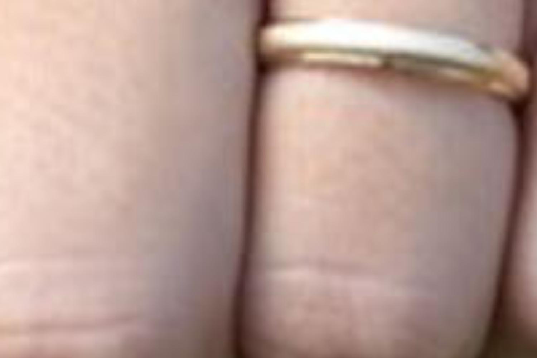 férfi erekciós gyűrű