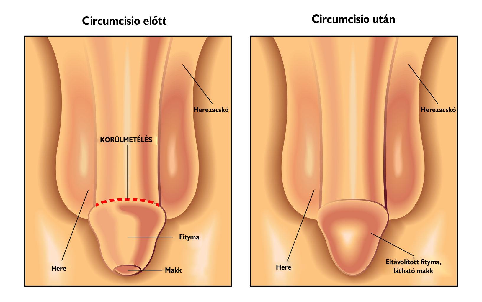 herezacskó nélküli pénisz