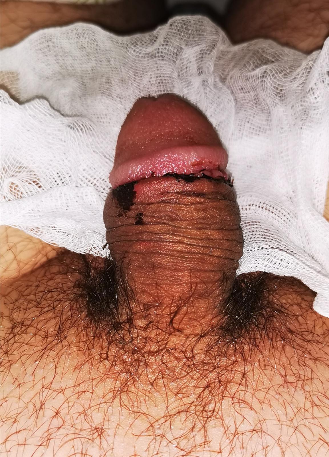 fasz az erekció után gyorsan leesik termékek az egészséges erekció érdekében