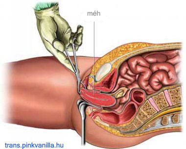 thrombophlebitis a péniszben)