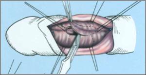 a pénisz kiegyenesítése műtéttel