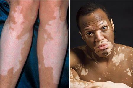 vitiligo a péniszen