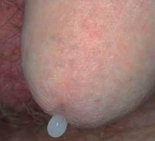 pénisz irigység a férfiakban