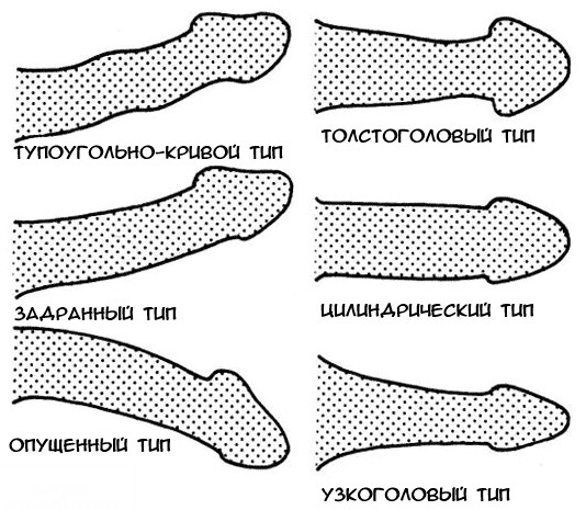 a férfiak hímvesszőinek alakja és típusai