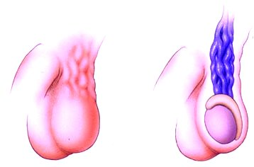 Varicocele műtét – Kardirex Egynapos Sebészeti Centrum