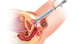 Mit kell enni műtét után eltávolítani a prosztata adenoma