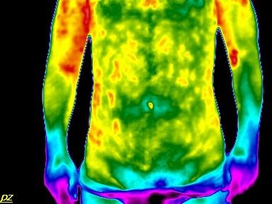 mit kell kezdeni erekcióval krónikus prosztatagyulladás esetén enni kell az erekció javítása érdekében