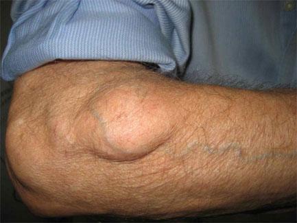 merevedés és urethritis