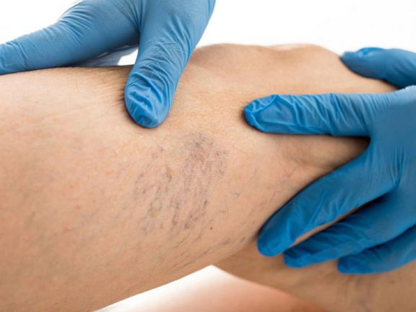 Élesztőgomba (kandidázis) férfiaknál: a patológia taktikája