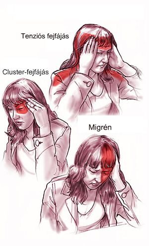 erekcióval járó súlyos fejfájás)