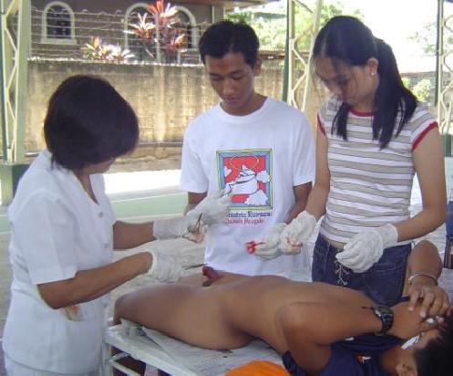 Penile egyengető gyakorlatok: Peyronie-betegségkezelés
