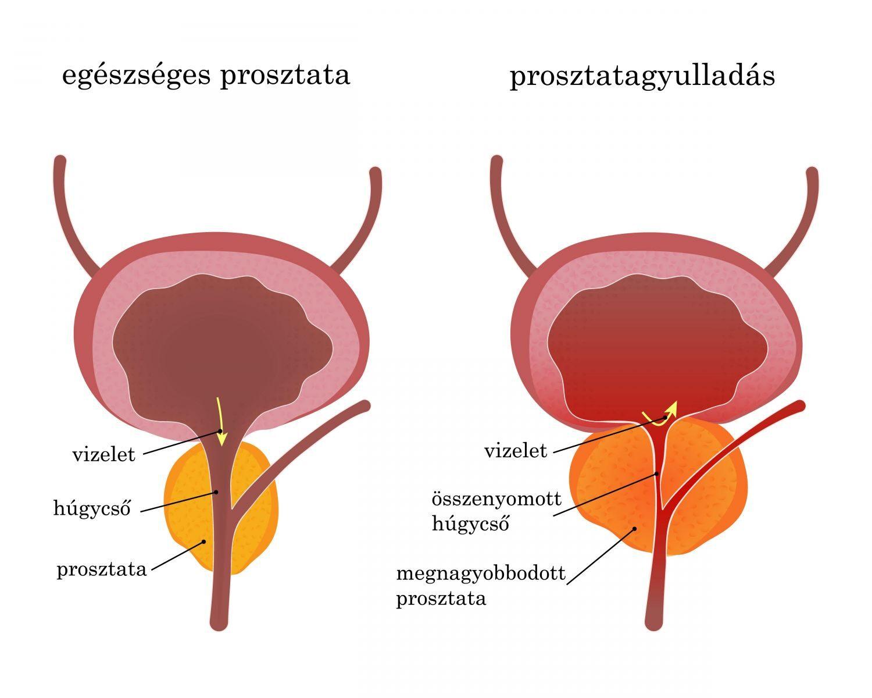 krónikus prosztatagyulladás merevedési probléma)