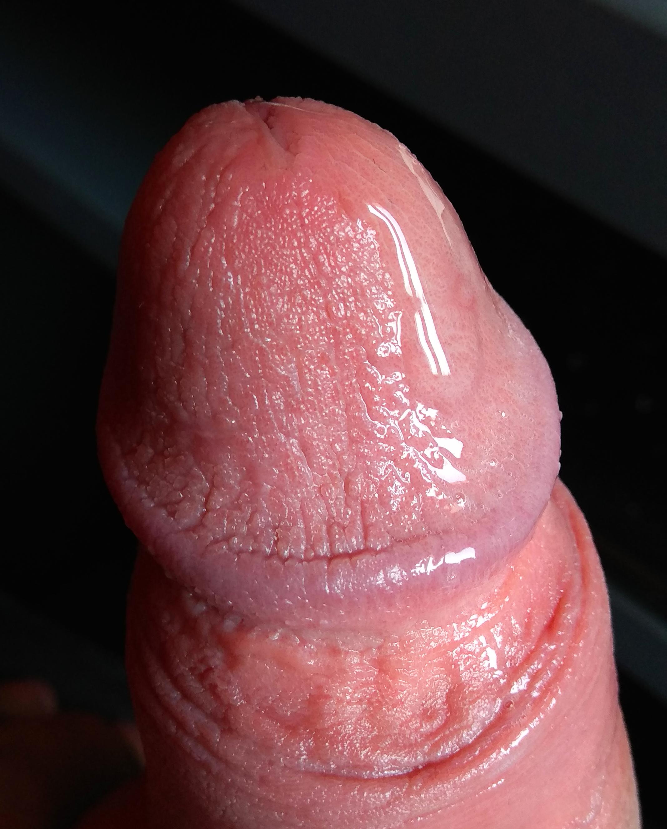 sperma az erekció során