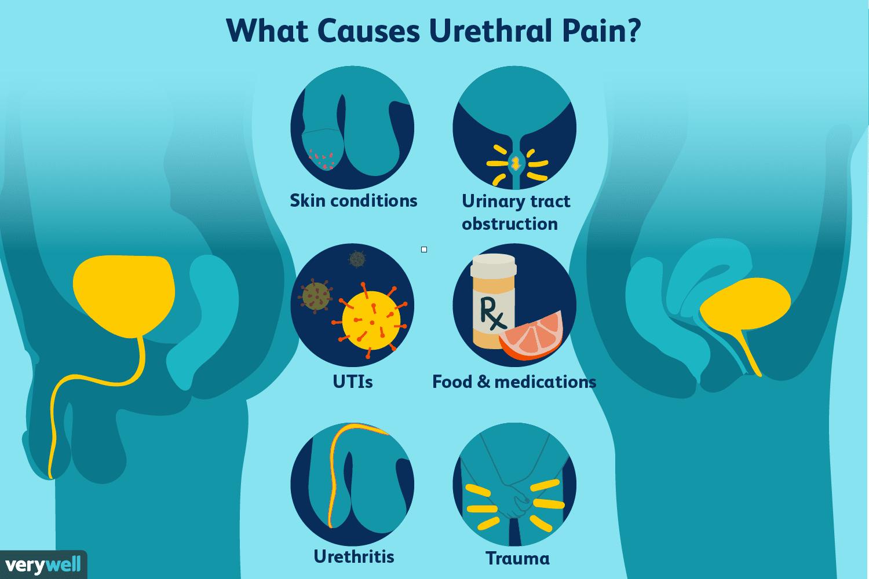 urethritis symptoms